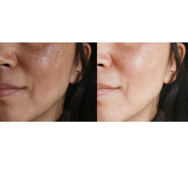 Tutu's Pantry - Clear Skin Oil - Lokelani Essentials - 2